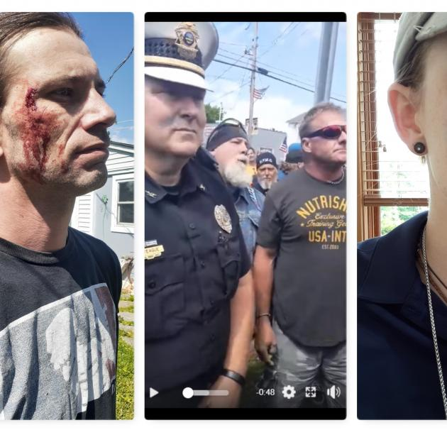 A guy with a bleeding face, cops and protestors