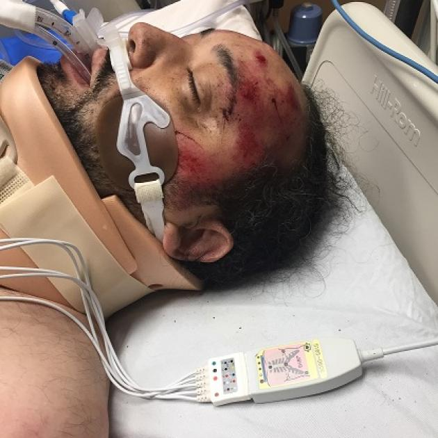Black man lying in hospital bed with red blotches all over his face with a breathing machine and neck brace